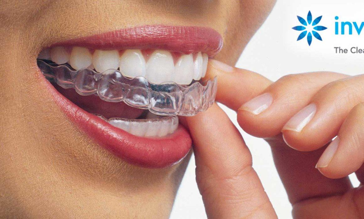 Soluzione invisalign presso lo studio dentistico barbara sarti